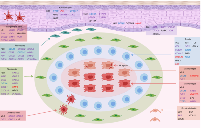 Figure showing a graphic representation of a leprosy granuloma with antimicrobial gene expression of various cell types shown.